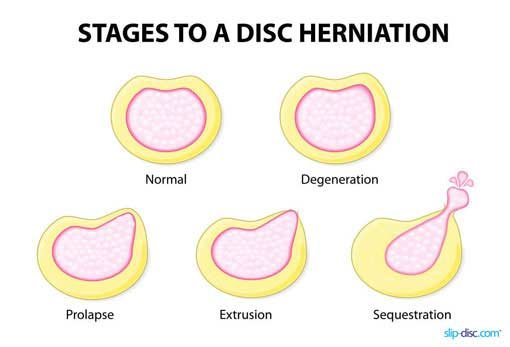 Stages of slip disc
