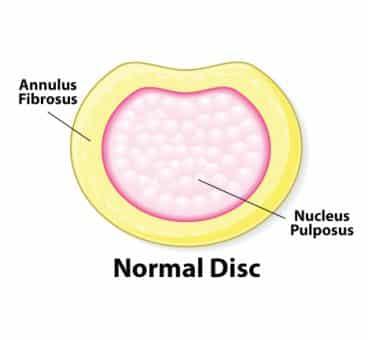 Normal Disc