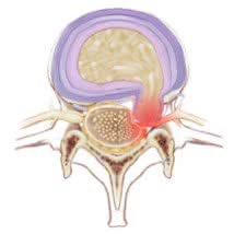 critical stage of slipped disc
