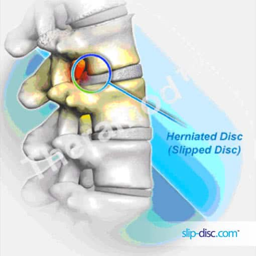 Slip Disc, Slipped Disc and Herniated Disc are terms describing the same condition