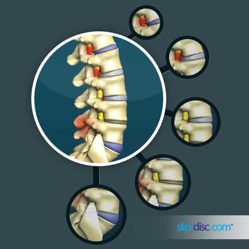 degenerative stages in spinal disc that lead to slip-disc