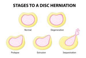 different types of slip discs