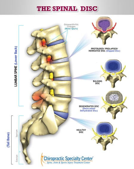 types of spinal discs damage with slip disc