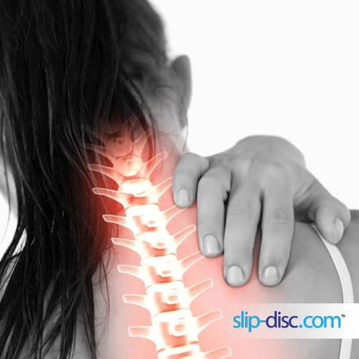 neck pain, slip disc, and upper back pain