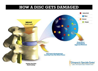 infographic on what causes slip disc